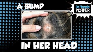 The Bump in Her Head...