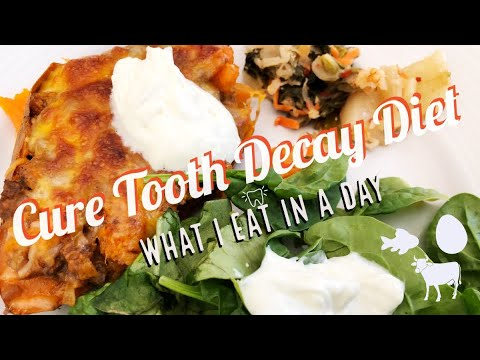 Weston A. Price Diet for Healing Teeth | What I eat in A Day