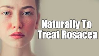 7 Remedies You Can Use To Naturally Treat Rosacea | Boldsky