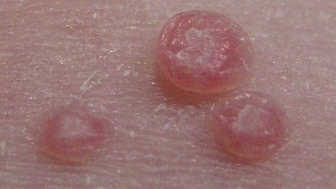 How to treat Molluscum Contagiosum - YouTube