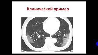 Лучевая диагностика легких у пациентов с COVID 19