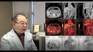 PET-CT 검사를 통한 췌장암 조기발견