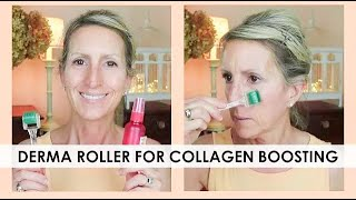 DERMA ROLLER FOR COLLAGEN BOOSTING! - GREAT FOR SKIN