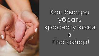 Как быстро убрать красноту кожи в Photoshop / How to remove the redness of the skin in Photoshop