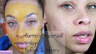 I TRIED TURMERIC FACE MASKS FOR 5 DAYS - RESULTS - ACNE PRONE SKIN