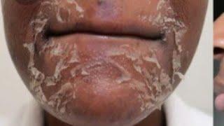 Glycolic Acid Cream | Pigmentation removal | Wrinkles | Acne scar | Open pores | Brijwasi Girl