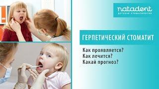 30. Острый герпетический стоматит у детей. Как лечить?