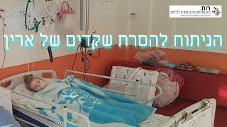 ניתוח להסרת שקדים ושקד שלישי של ארין