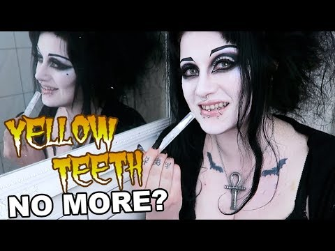 I Whitened My Teeth for a Month. Did it Work? | Black Friday