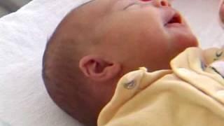 La plagiocéphalie ou tête plate du nourrisson