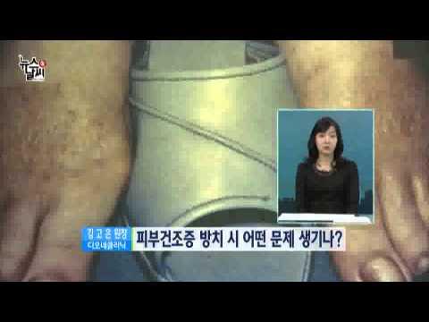 가렵고 따갑고 '피부건조증' [02/10] / YTN 웨더