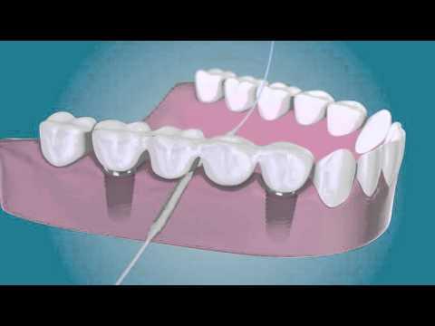 Nettoyez Autour De Vos Implants Dentaires Avec TePe Bridge & Implant Floss
