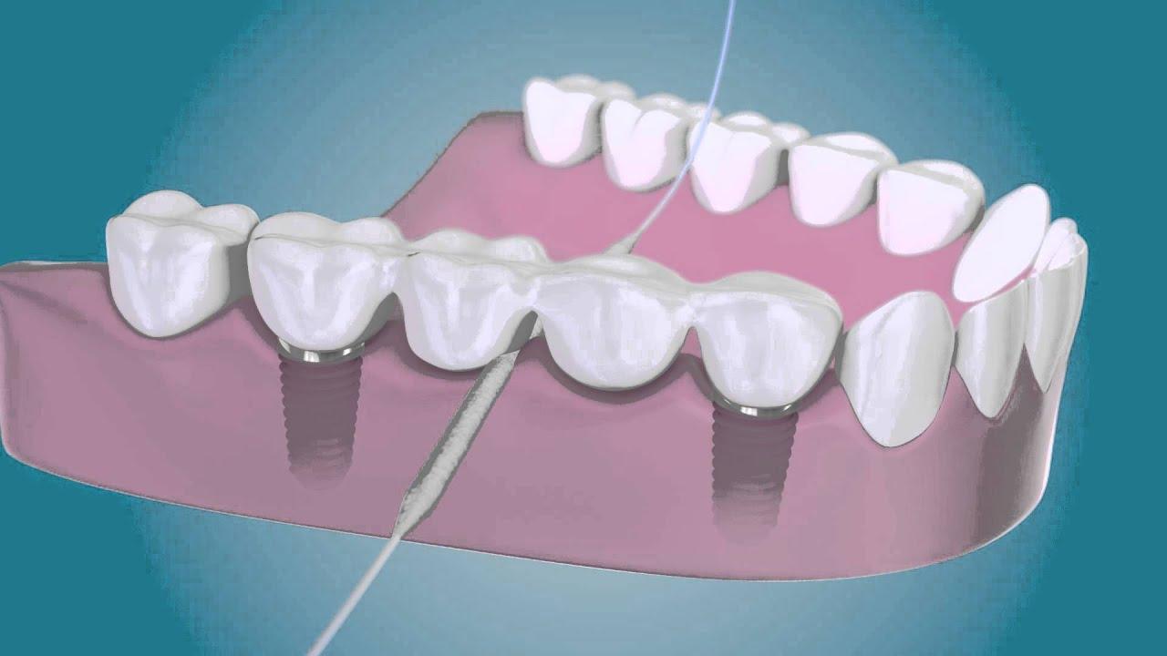 """Résultat de recherche d'images pour """"bridge dentaire sur implants"""""""