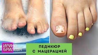 ПЕДИКЮР с мацерацией 🌸 Педикюр пилкой 🌸 Ирина Брилёва