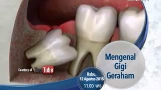 Gigi impaksi, nyerinya ga main-main. Masalah ini sering dialami oleh usia remaja atau dewasa. Karena.