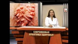 видео Папиллома у женщин - что это такое, вирус человека, лечение, на интимных местах, 16 типа, симптомы, фото
