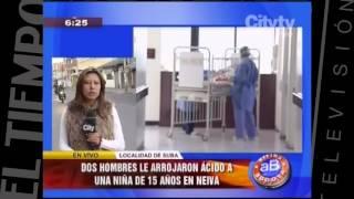 Niña atacada con ácido  CityTv   Arriba Bogotá  Febrero 1