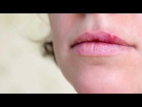 Difese immunitarie basse herpes dating