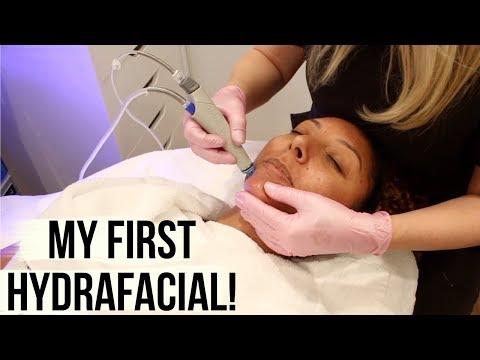 My First Hydrafacial - ACNE PRONE SKIN remedy! | BiancaReneeToday