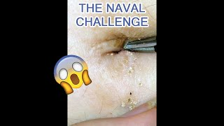 Cleaning a Filthy Bellybutton: A How To and Asking for Advice