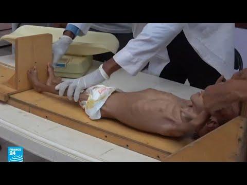 صور -موجعة- لأطفال من اليمن يواجهون خطر المجاعة  - 17:54-2018 / 9 / 19