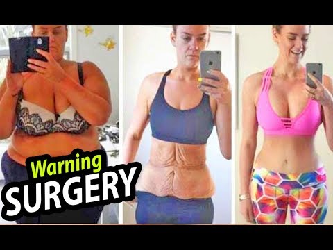 gastric-bypass-surgery---everything-you-need-to-know