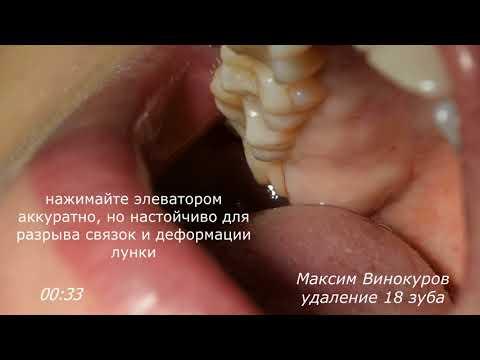 Методика удаления верхнего зуба мудрости
