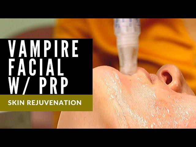 Vampire Facial | Microneedling w/SkinPen | PRP | Skin Rejuvenation w/Dr. Thomas E. Young