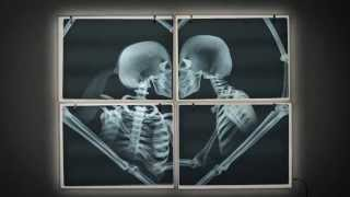 Anadolu Sigorta | Bir Aşkın Röntgeni