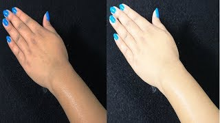 Skin Whitening Summer Facial | Get Fair, Glowing, Spotless Skin Permanently