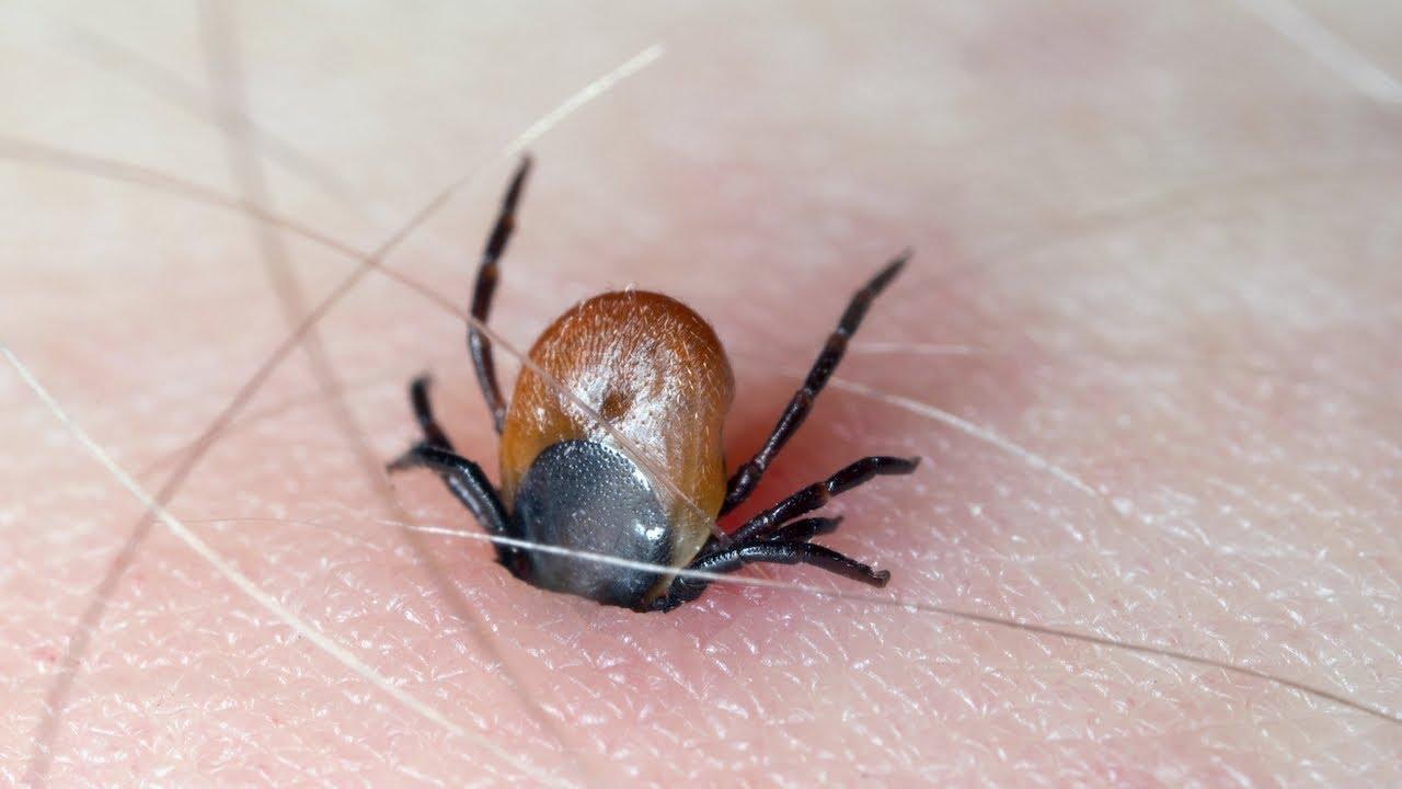 هل تعلم أن هذه الحشرة تعيش في وجهك يوميا .. ولا يمكنك التخلص منها !