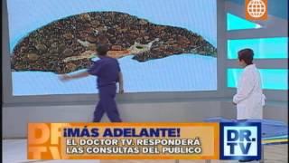 Doctor Tv - Enemigos del hígado - 11/07/13