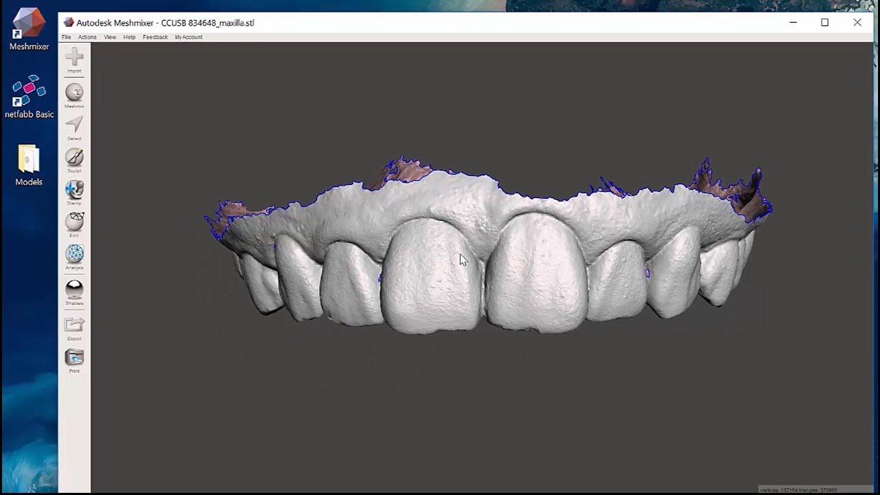 Introducing Open Source Digital Dentistry – Michael Scherer