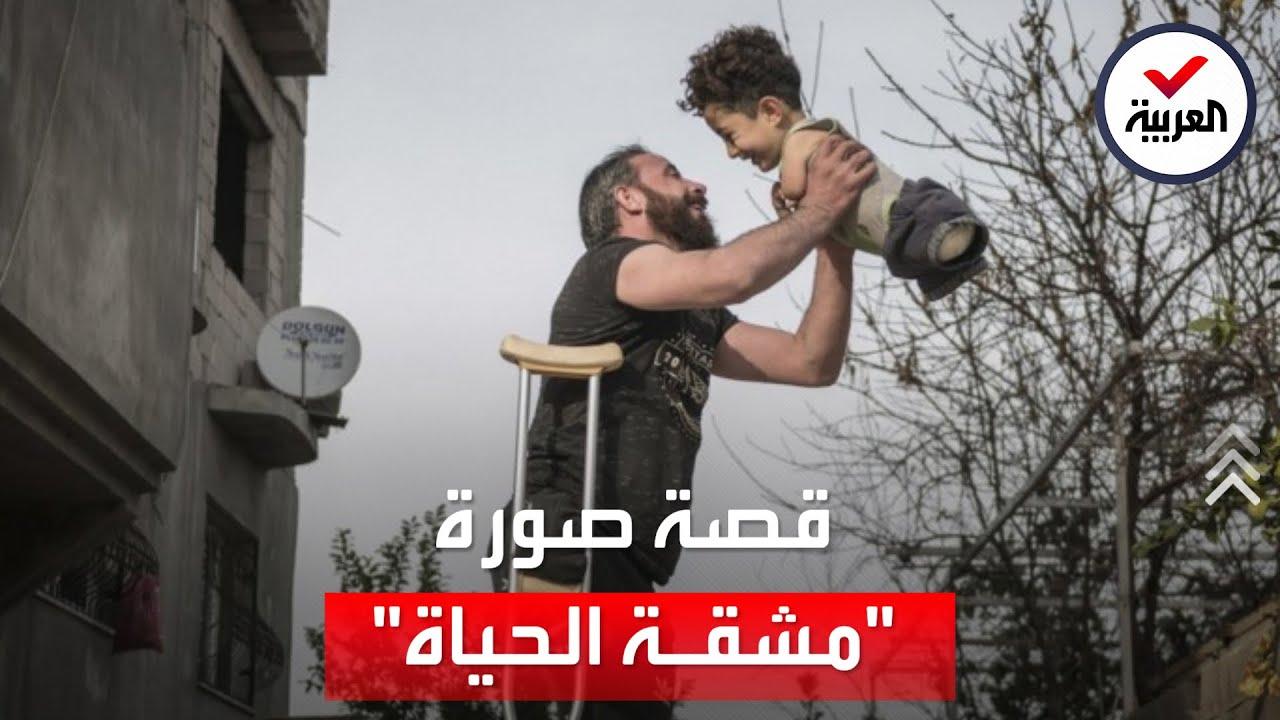 صورة العام.. رجل سوري بساق وطفل بلا أطراف  - نشر قبل 2 ساعة