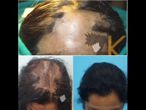 2600 Graft Hair Transplant Before After Result, India, Dr Kapil Dua. Cicatricial Alopecia Patient