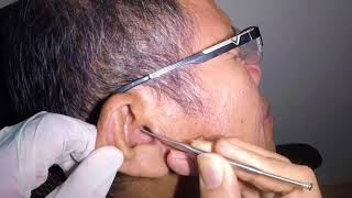Elderly Man's Titanic Earwax Removal- Just the Tip of the Iceberg