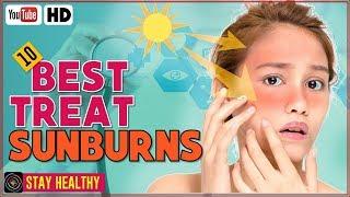 10 Best Treatments For Sunburns for Face