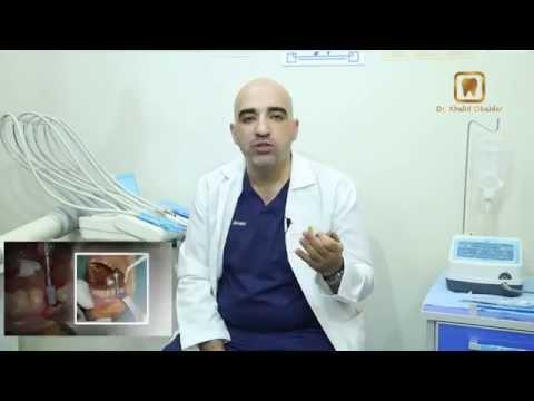 برنامج معلومه طبية  مع الدكتور خالد عبيدات – الحلقة الاولى زرعة الاسنان ج1- إخراج عدنان أبوالحاج