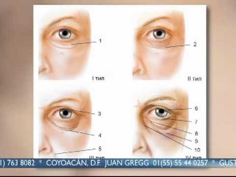 Radevit de las arrugas en la cara las revocaciones