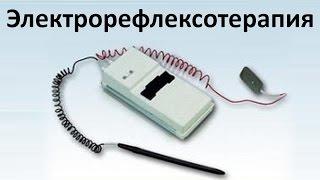 Электрорефлексотерапия - Петренко Валентина Васильевна