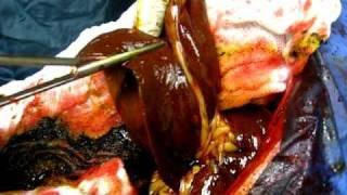 helminták az epehólyag kezelésében parazita hany az emberi testben