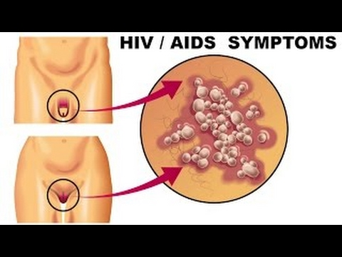 hiv symptoms (hiv, aids) aahc - youtube, Human Body