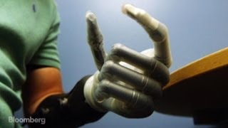 Rise of the Bionic Man: High-Tech Hand for Amputees