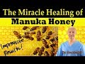 The Miracle Healing of Manuka Honey - Dr Alan Mandell, DC