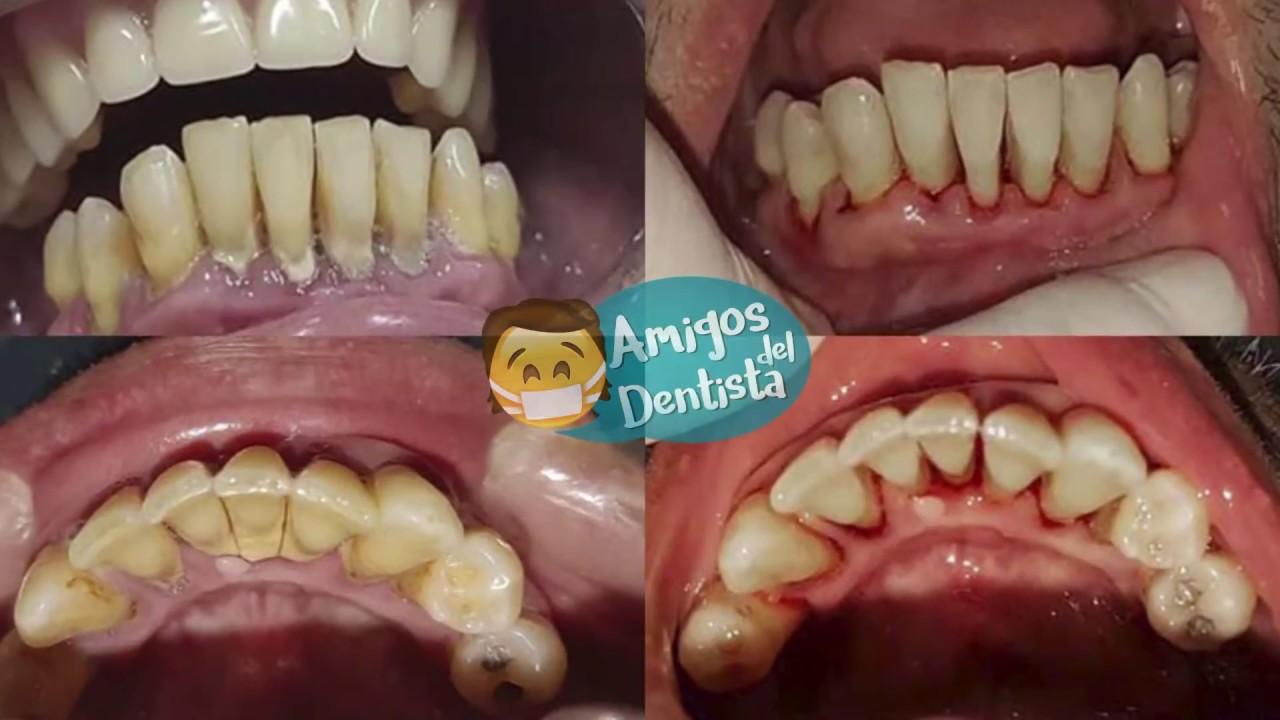 Remoción de Cálculo Dental