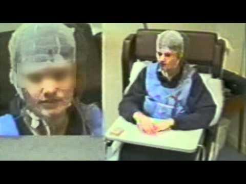 Юношеская миоклоническая эпилепсия. Часть 1