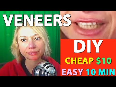 DIY VENEERS / CHEAP  $10 / EASY 10 MIN / DIY AT HOME Update / Follow Up after 1 year use