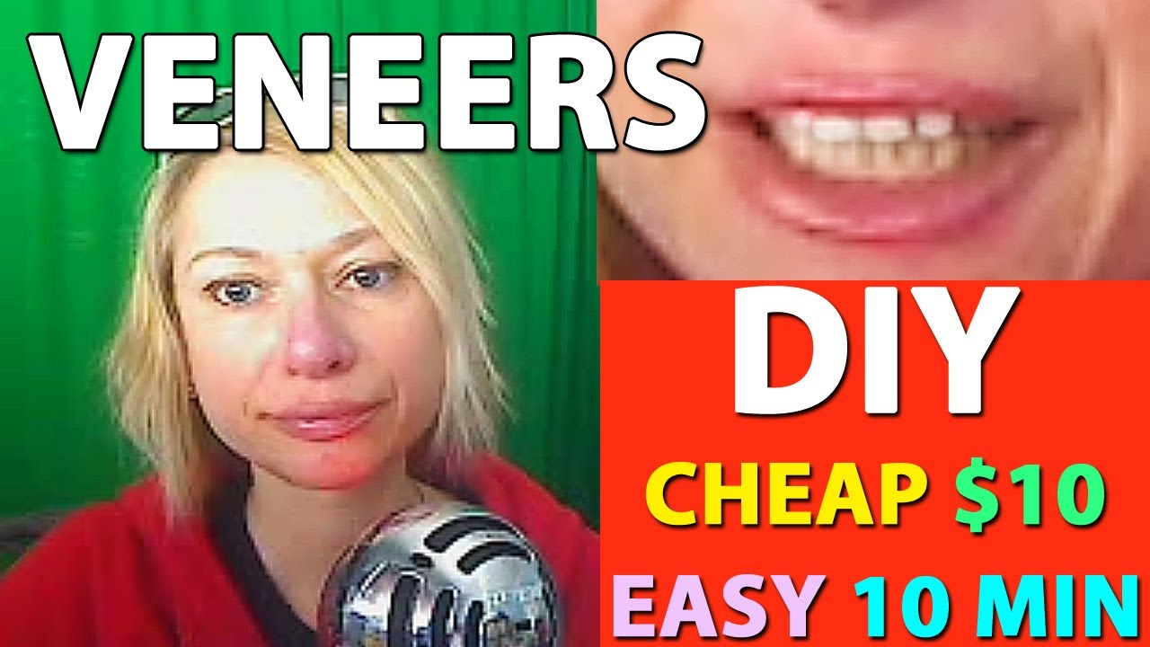 Diy veneers cheap 10 easy 10 min diy at home update follow diy veneers cheap 10 easy 10 min diy at home update follow up after 1 year use solutioingenieria Gallery