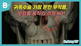 귀족수술 가장 흔한 부작용, 보형물 움직임 걱정 NO!