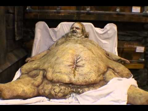 Fatty pics images 8